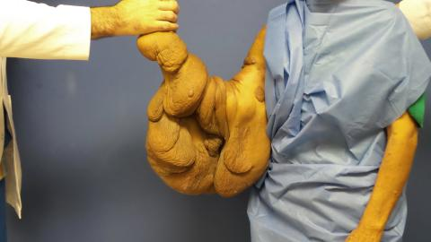 {E}03: My Giant Arm