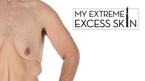My Extreme Excess Skin